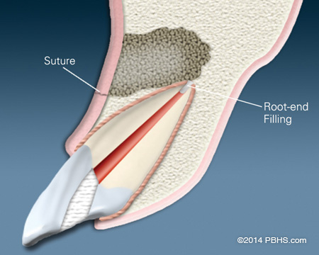 An illustration showing a placed suture after removing an infection at a root end