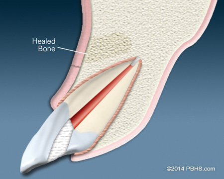 Diagram of a healed upper tooth and jaw bone after an apicoectomy