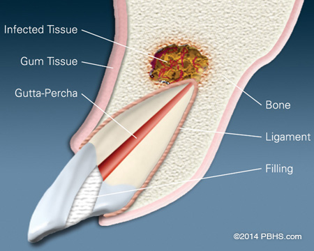 A tooth diagram pointing to infected tissue, bone, gum tissue, gutta-percha, ligament and filling