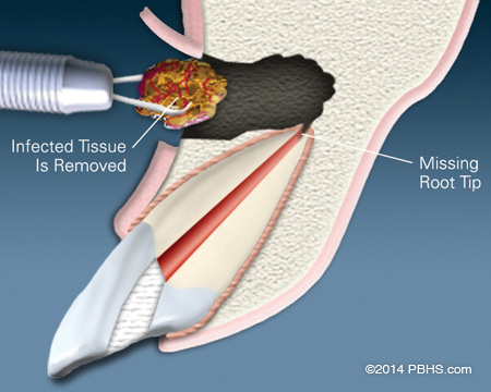 Diagram of a tooth getting an apicoectomy - surgical removal of infected tissue through the upper gum and jaw