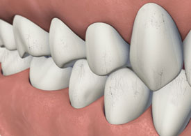 Illustration: Craze lines on upper and lower teeth exteriors