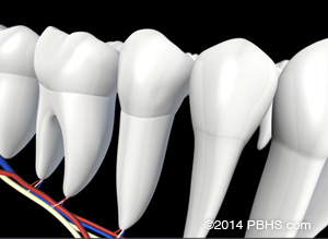 A digital illustration of a fully healed tooth after placing a new root canal filling