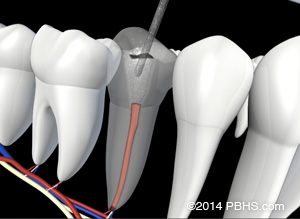 A visual of removing fillings from a tooth, allowing your Endodontist to access inflamed tissue.
