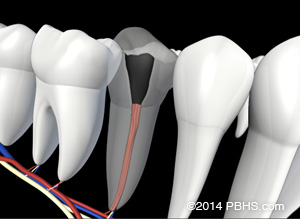 A digital illustration of new root filling material placed into a tooth's canals