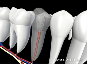 Lower teeth and nerves illustration: A tooth's filling restored by new root canal filling