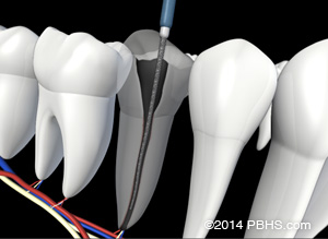 A representation of a tooth with its canals cleaned and ready to be filled with new material by your Endodontist.