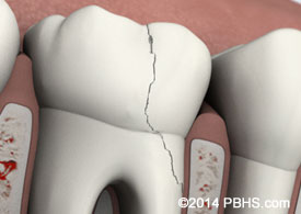 A digital illustration of a tooth with a fractured cusp