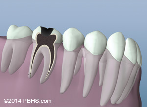 Root Canal illustration: Lower molar tooth with its canals cleaned and an opening in the crown