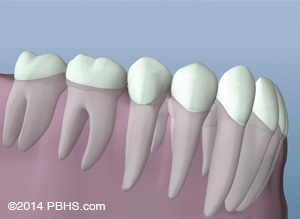 Root Canal illustration: Healthy tooth roots and crowns in a lower jaw