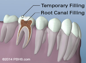 Illustration of a tooth diagram pointing to root canal and temporary filling