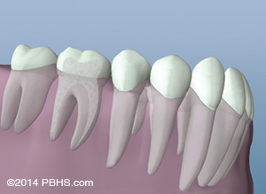 The tooth can then be restored after the root canal therapy