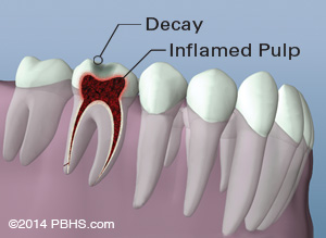 Lower jaw and teeth illustration: Tooth inflammation showing tooth decay and a inflamed pulp inside the tooth