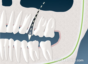 Illustration: Air communication from the sinus through an upper tooth after root canal