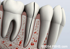 A digital illustration of a split tooth