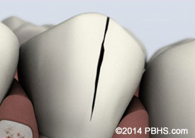 Illustration: A lower tooth showing a treatable cracked tooth at the crown