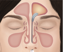 A diagram of the NuVent™ balloon being inflated inside the nasal pathway.