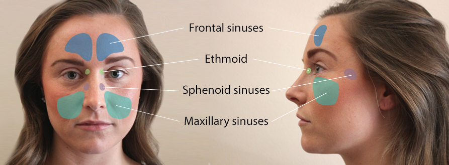pictograph explaining sinusitis