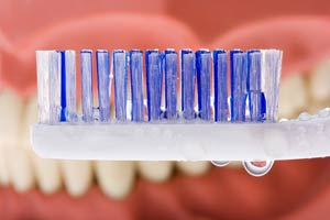 Photo of wet Tooth Brush in front of Dentures