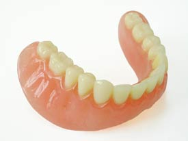 A photo of a prosthetic denture appliance for the lower jaw