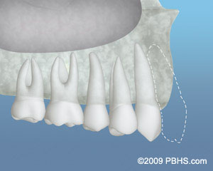 Upper side jaw illustration: Bone graft material placed to increase the bone structure