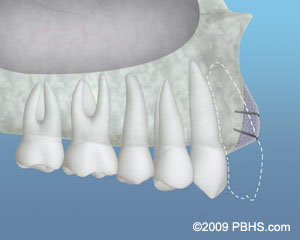 A depiction of bone grafting material placed to increase the bone structure
