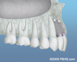 Upper side jaw illustration: Two front dental implants placed after bone grafting