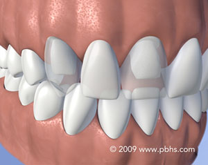 Illustration: a mouth with dental fixed bridge to replace a missing upper front tooth