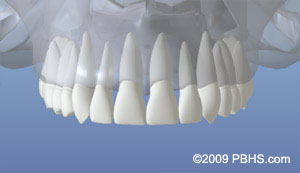 Dental Implant placement illustration: A depiction of the upper jaw with all normal teeth and roots