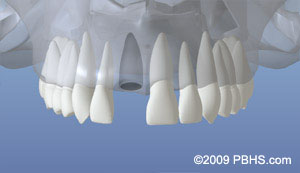 Dental implant placement illustration: A mouth showing the upper jaw missing a front tooth with the jaw bone unhealed