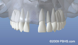 Dental implant placement illustration: a healed upper jaw bone after a front tooth is gone