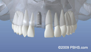Dental implant placement illustration: A mouth showing the initial dental implant placed in the upper front jaw bone