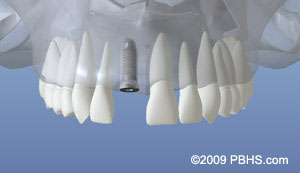 Dental implant placement illustration: A mouth showing upper jaw bone healed after dental implant placement