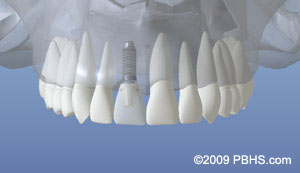 Dental implant placement illustration: A mouth showinga fully restored upper front tooth using a dental implant