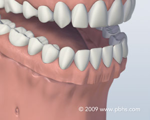 A representation of a mouth with a full denture for the entire lower jaw
