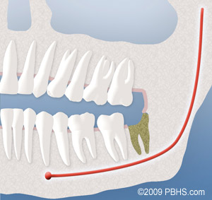 Diagram of a dry socket that developed after the removal of a wisdom tooth