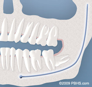 Wisdom Teeth illustration: A wisdom tooth completely impacted by bone and affecting a normal tooth root in lower jaw