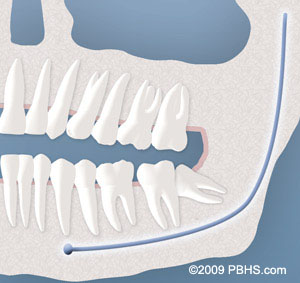 Wisdom Teeth illustration: A lower wisdom tooth with a partial bony impaction crowding lower teeth in jaw