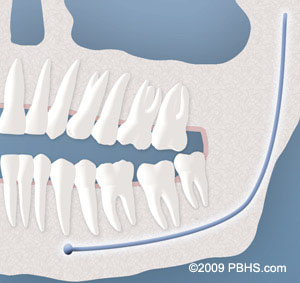 Wisdom Teeth illustration: Lower erupted tooth with soft tissue impaction, affecting bite
