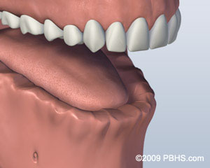 A digital representation of a mouth that has all lower jaw teeth missing