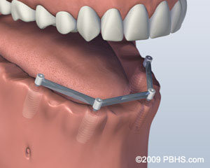 Mouth with no bottom teeth and four implants connected by a metal bar in the lower jaw
