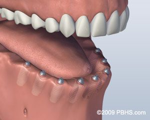 A mouth that has multiple implants and no teeth on its lower jaw, performed in Deer Run Dental, Belleville IL