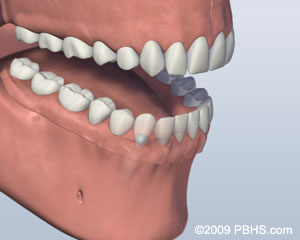 A mouth showing Lower jaw with a ball attachment denture latched onto the lower jaw by two dental implants; illustration