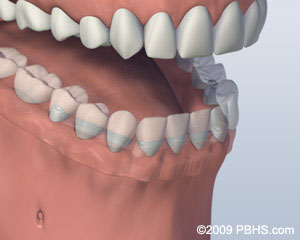 A mouth showing Lower jaw with a denture secured onto a bar attachment and four dental implants; illustration