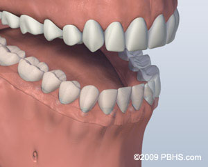 Illustration of a mouth with a Screw Retained Denture affixed onto the lower jaw by six implants