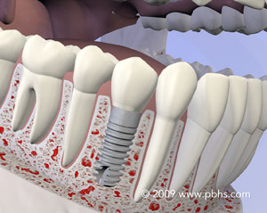 Lower jaw bone illustration: A mouth with a permanent dental implant and crown to replace a missing tooth