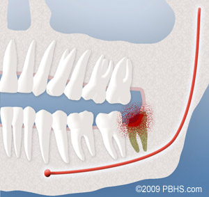 A diagram depicting an infection that occurred after the removal of a wisdom tooth