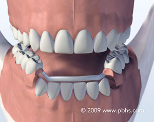 Illustration: A mouth with a sturdy partial denture cast in metal and plastic to replace missing back teeth