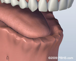 A digital representation of the lower jaw missing all of its teeth