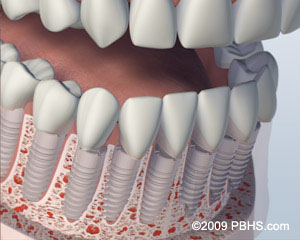 Missing all lower teeth illustration: A mouth showing the lower jaw with all the teeth as individual implants