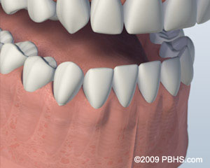 Illustration of a mouth with tooth replacements on each dental implants